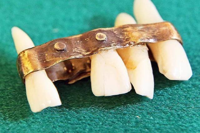 Dentalmuseum: Kuhknochen-Gebiss und Zahnbürsten aus dem Königshaus