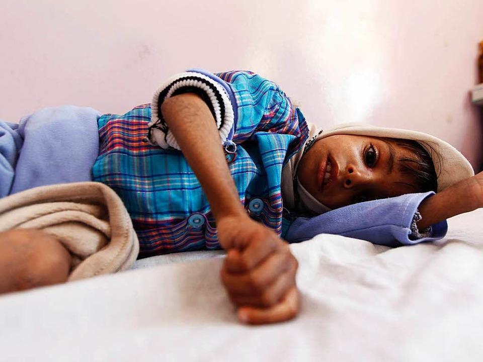 Ein unterernährter  Junge im Jemen  | Foto: AFP