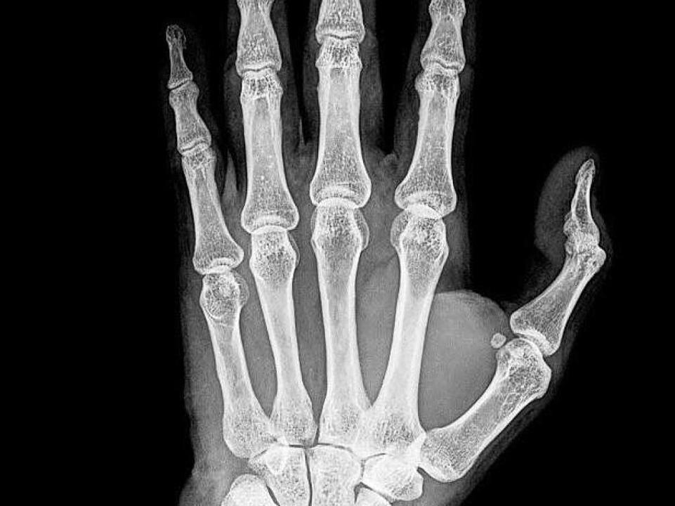Röntgenbild einer Hand  | Foto: thailoei92 - Fotolia
