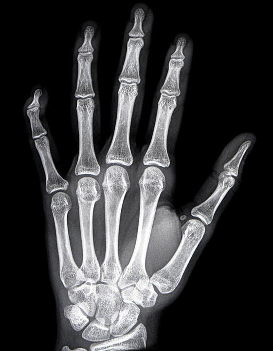 Ein Indiz zur Altersschätzung kann das Röntgen der Hand liefern.  | Foto: Felix Kästle