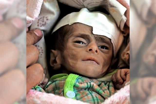 20 Millionen von Hungertod bedroht