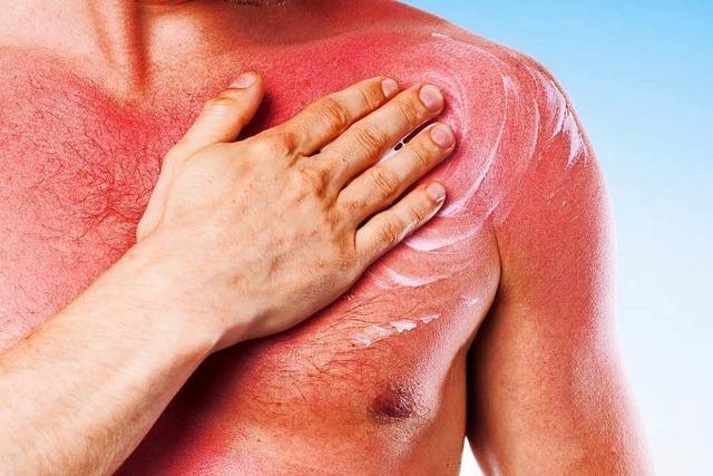 Was man zum Thema Hautkrebs und Sonne wissen muss