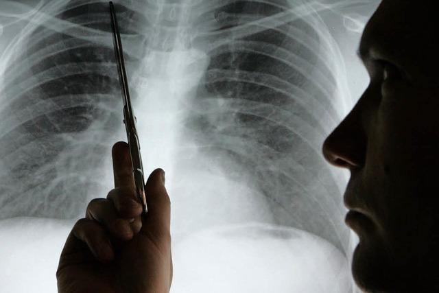 Atemtest könnte Lungenkrebs im Frühstadium erkennen