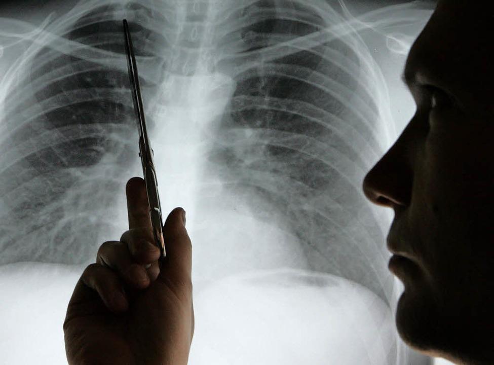Auf dem Röntgenbild lässt sich Lungenkrebs sicher  feststellen.   | Foto: dpa