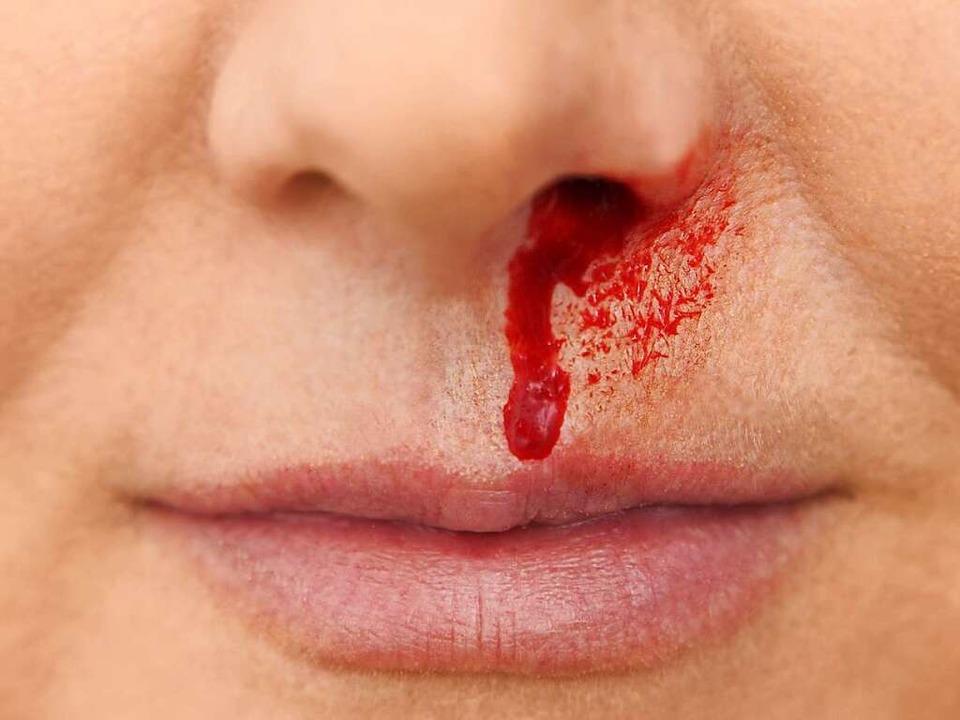 In der Regel harmlos: Nasenbluten   | Foto: Friedberg (Fotolia.com)