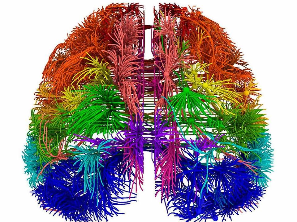 Das Modell zeigt einige, aber beileibe...enverbindungen im menschlichen Gehirn.  | Foto: dpa (2)/AFP