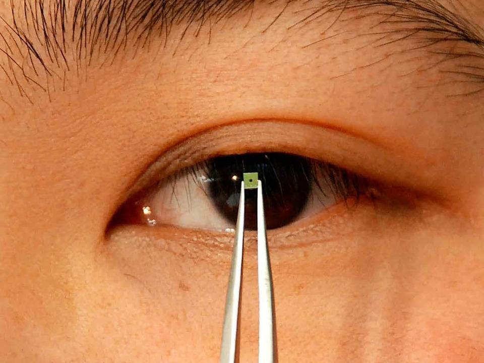 So ein winziger Chip steckt auch in einem Retina-Implantat.  | Foto: Frank Hagmeyer