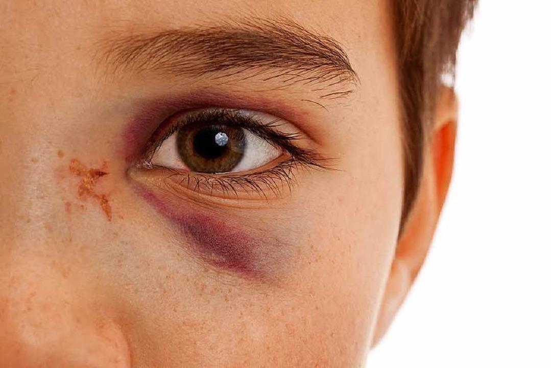 Blaues Auge  | Foto: Markus Bormann - fotolia.com