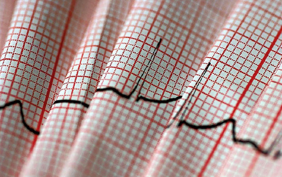 Der Ausdruck eines EKGs kann Aufschluss über eine Herzschwäche geben.  | Foto: Alice Mikyna/DPA