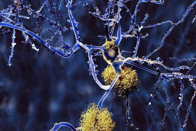 Welche Rolle spielen Eiweißablagerungen bei Alzheimer?