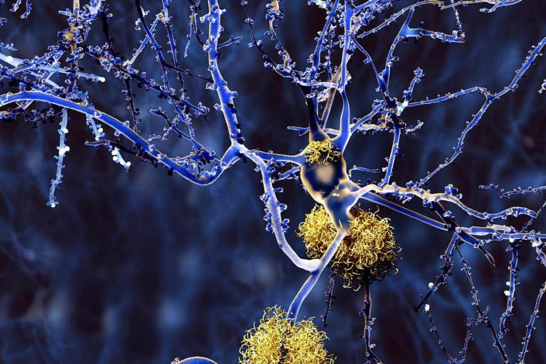 Die Funktion der Nervenzelle (Mitte ob... die Ablagerungen vermutlich  bedroht   | Foto: Adobe.com