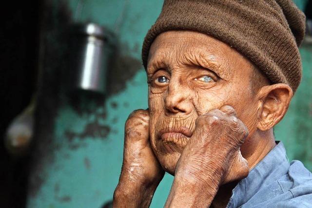Menschen mit Lepra werden noch immer verstoßen – auch nach der Heilung