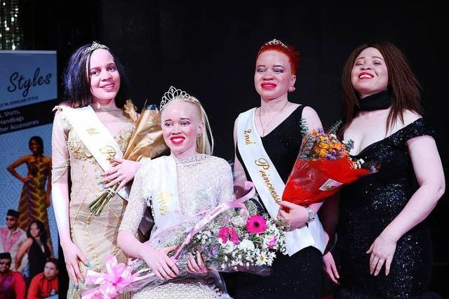 Simbabwe kürt seine erste Albino-Schönheit