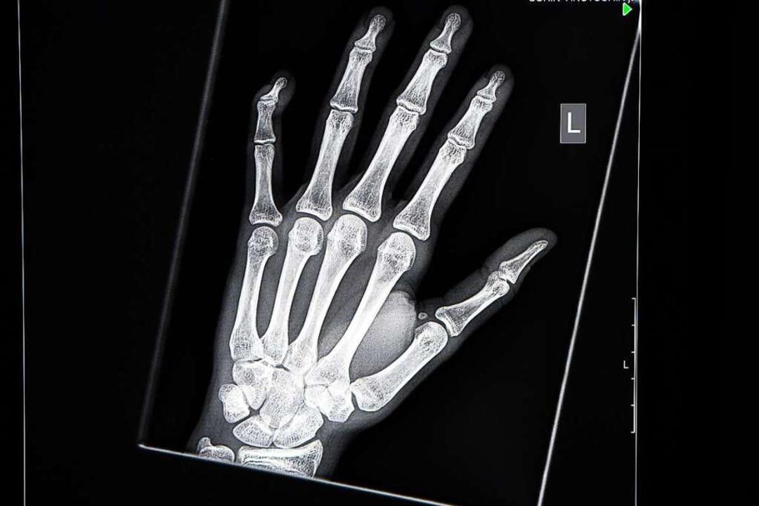 Das Röntgen zur Altersbestimmung bleibt umstritten.  | Foto: Felix Kästle