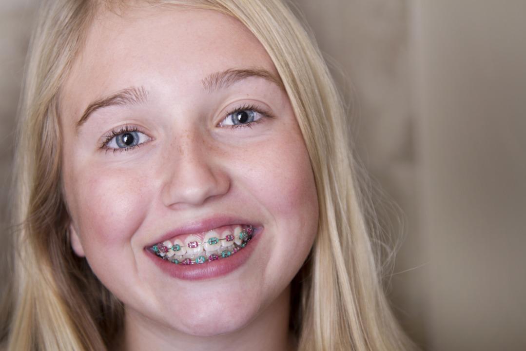 Hässlich zahnspange Zahnspange, Ärzte