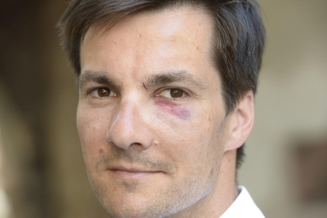 Sichtlich lädiert: Martin Horn am Tag ...Wahl zum Freiburger Oberbürgermeister.  | Foto: Ingo Schneider
