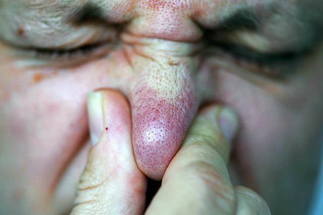 Gebrochene Nase nach Wirtshausbesuch
