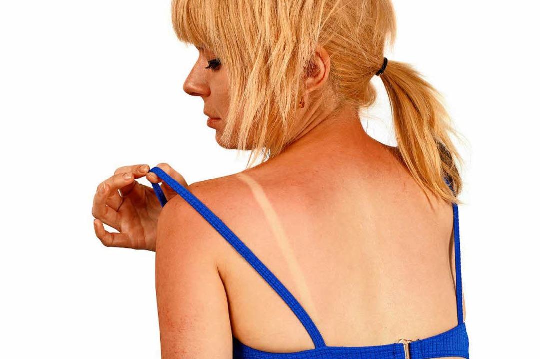 Ein Sonnenbrand in der Jugend kann vie... später einen Hautkrebs verursachen.      Foto: Fotolia