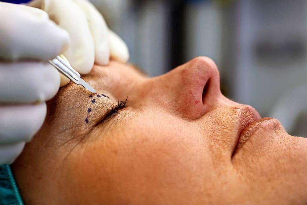 Ein Schönheitschirurg malt eine Linie ... des Augenlids dieser Patientin hilft.  | Foto: Jens Schierenbeck
