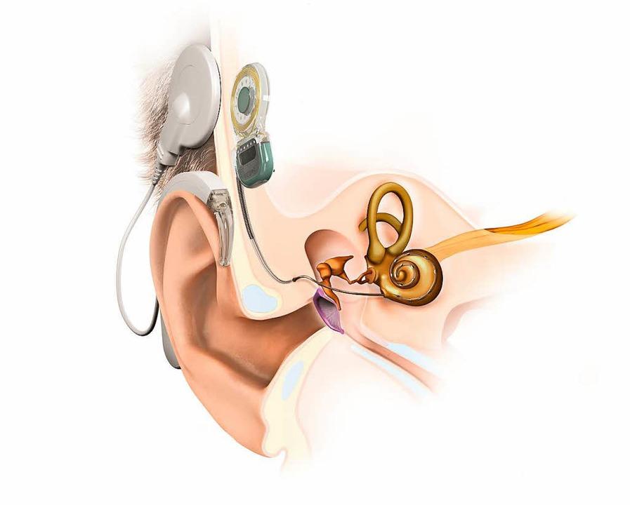 Das Cochlea-Implantat hilft, wenn Hörgeräte keine ausreichende Lösung bieten.  | Foto: MED-EL