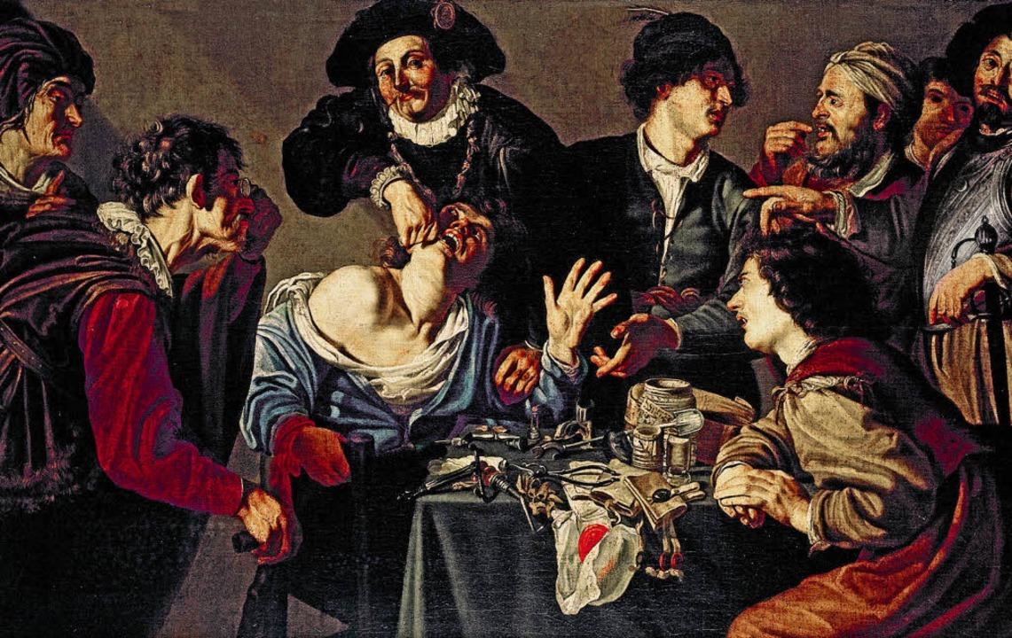 """""""Ein Operateur zieht einen Zahn&...211; Gemälde aus dem 17. Jahrhundert      Foto: Wellcome Library London"""