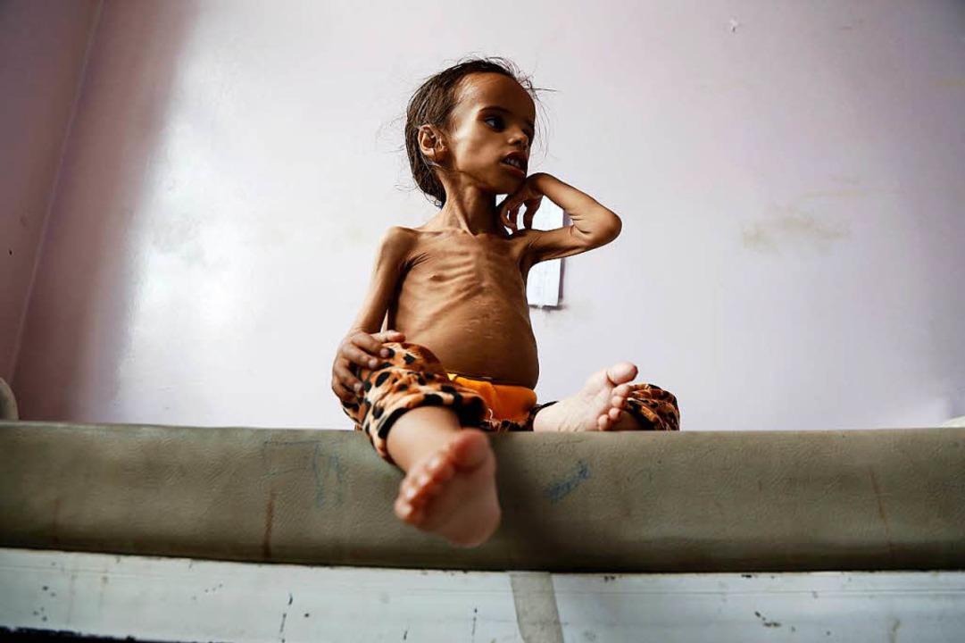 Ein unterernährtes vierjähriges Kind in Sanaa, der Hauptstadt des Jemen.   | Foto: DPA