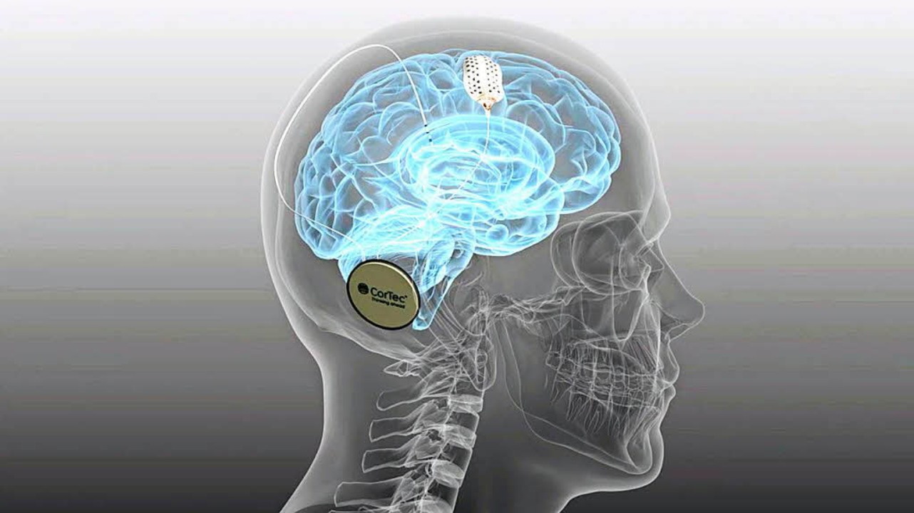 Das Cortec-Implantat arbeitet mit dem Gehirn zusammen.      Foto: fotos: Saltzer-Deckert, Cortec