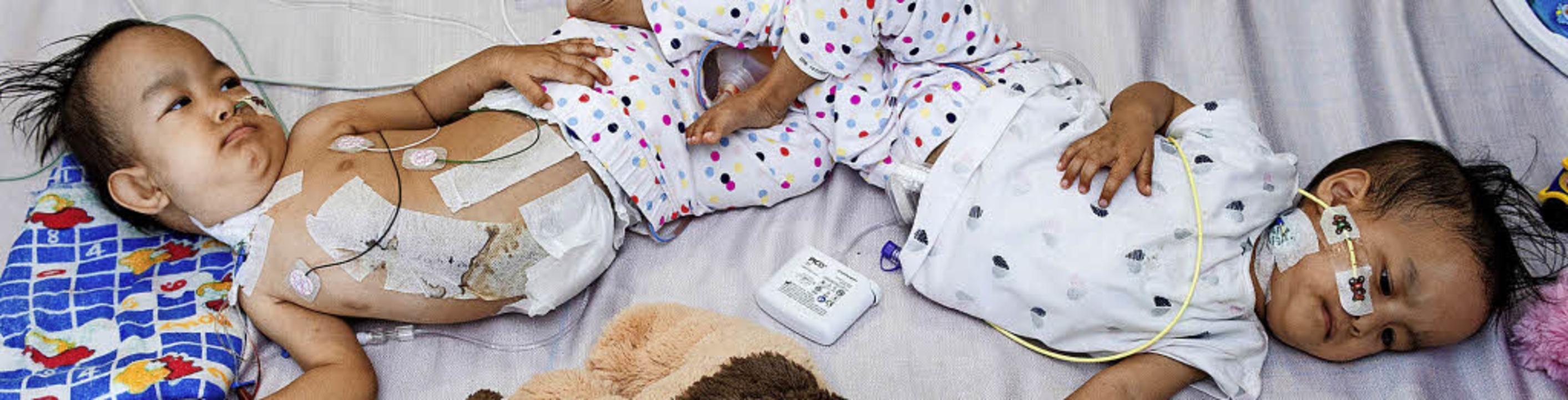 Die Siamesischen Zwillinge Nima und Da...hlafen weiter lieber zusammen im Bett.    Foto: dpa