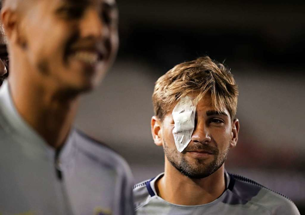 Boca-Juniors-Spieler Gonzalo Lamardo mit Verband über dem Auge.    Foto: AFP