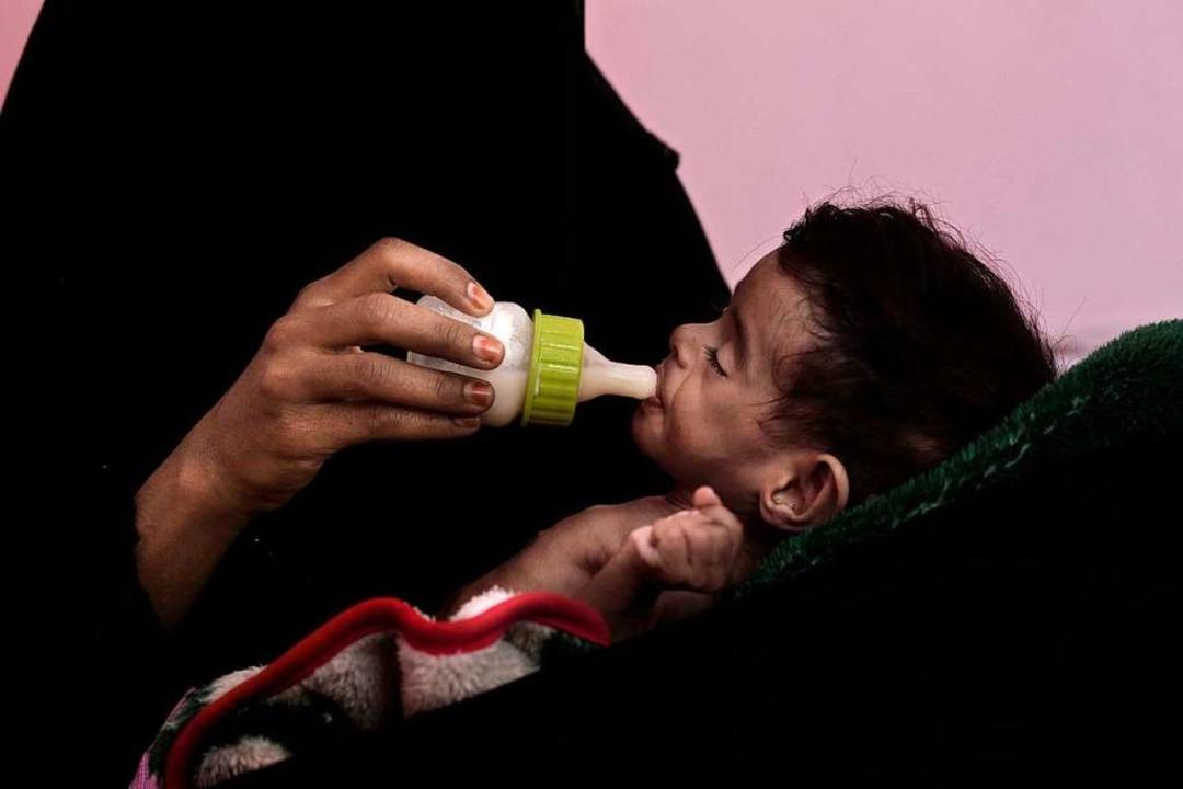 Ahmed Rashid Mokbel, ein 7 Monate alte...er im Krankenhaus Al-Sadaqa gefüttert.    Foto: dpa