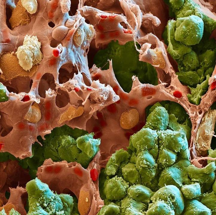 Metastase in der Lunge einer Maus. Tumorzellen sind grün gefärbt.  | Foto: DKFZ
