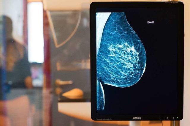 Forscher melden Patent für Brustkrebserkennung per Bluttest an