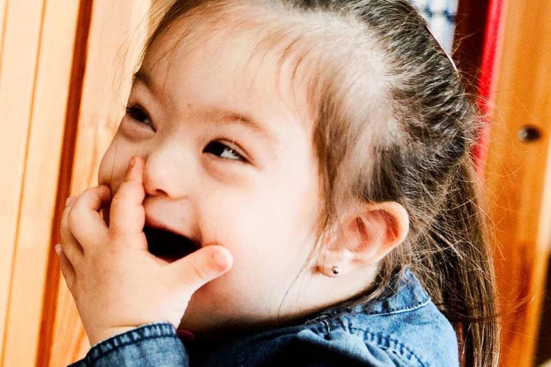 Ein Mädchen mit dem sogenannten Down-Syndrom   | Foto: dpa