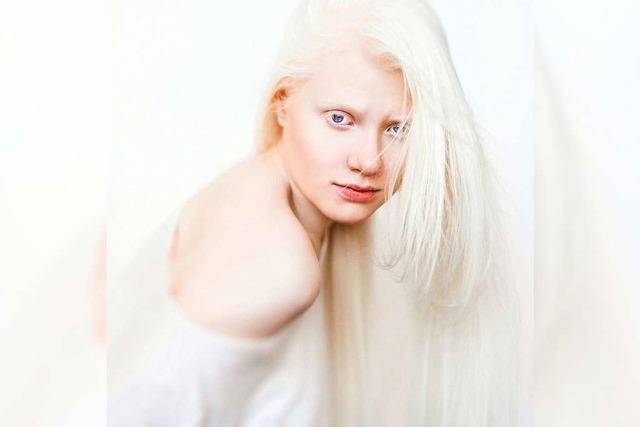 Was ist ein Albino?