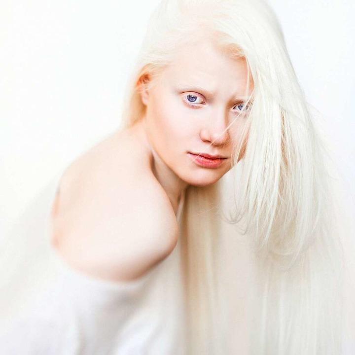 Was ist ein Albino?  | Foto: Tatsiana Tsyhanova - stock.adobe.com