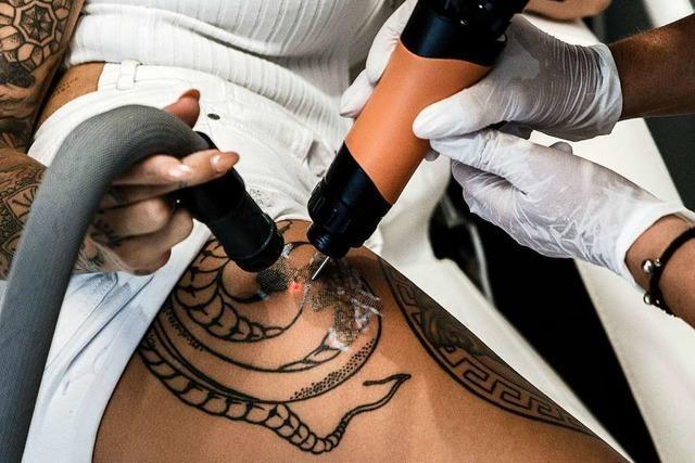 Ab Ende 2020 dürfen nur noch Ärzte Tattoos entfernen