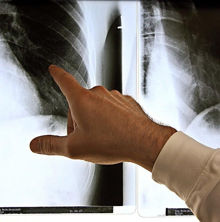 Röntgenbilder helfen beim Rheumabefund.     Foto: Arno Burgi (dpa)