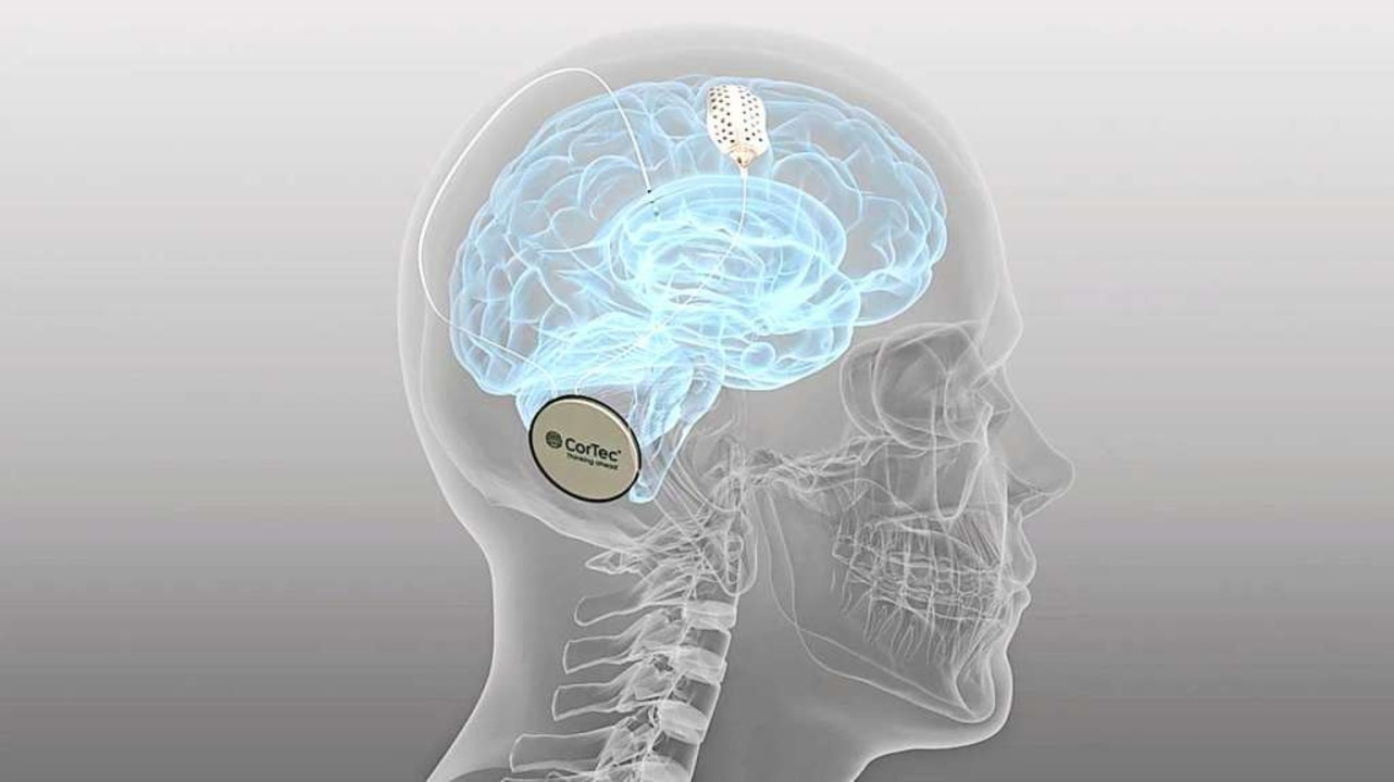 Hightech-Medizintechnik  aus Südbaden:  das Cortec-Implantat mit Elektrode  | Foto: Cortec