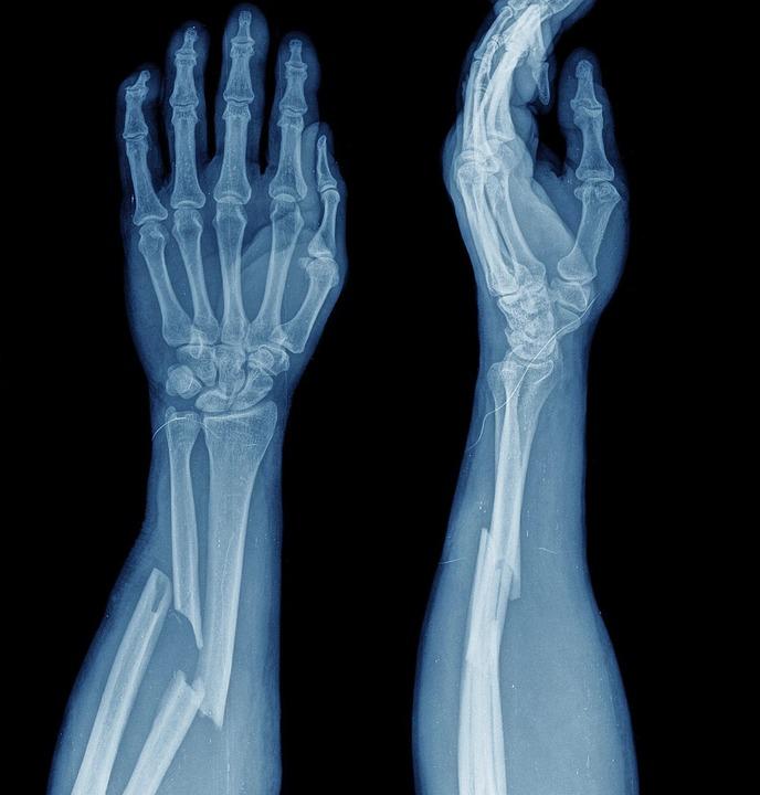 Autsch: Wenn Knochen brechen, tut das ...ondern auch am Flughafen (Bild unten).    Foto: oceandigital - stock.adobe.com