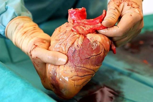 Was ist eine Organspende?