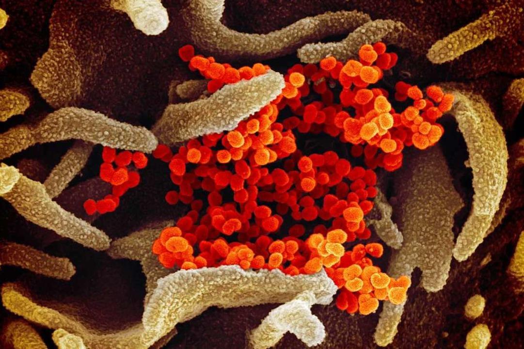 Eine elektronenmikroskopische Aufnahme...ealth zeigt das neuartige Coronavirus.  | Foto:  (dpa)