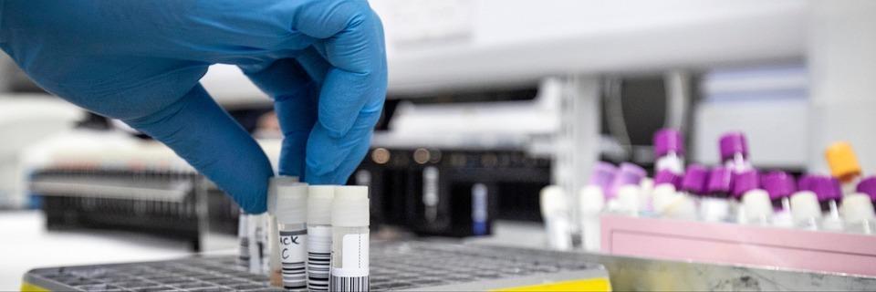 Erste Coronavirus-Infektion in Baden-Württemberg