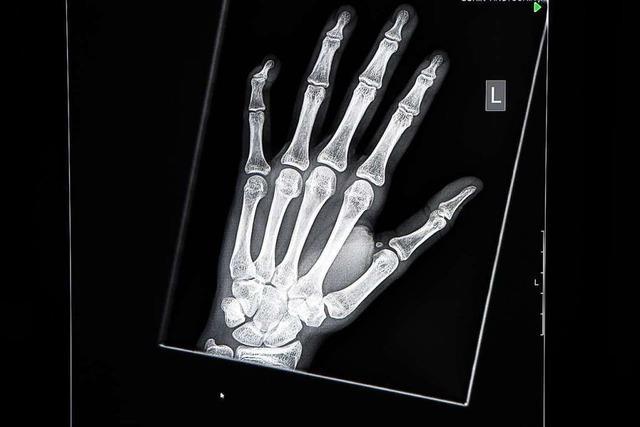 So entdeckte Wilhelm Röntgen die Strahlung